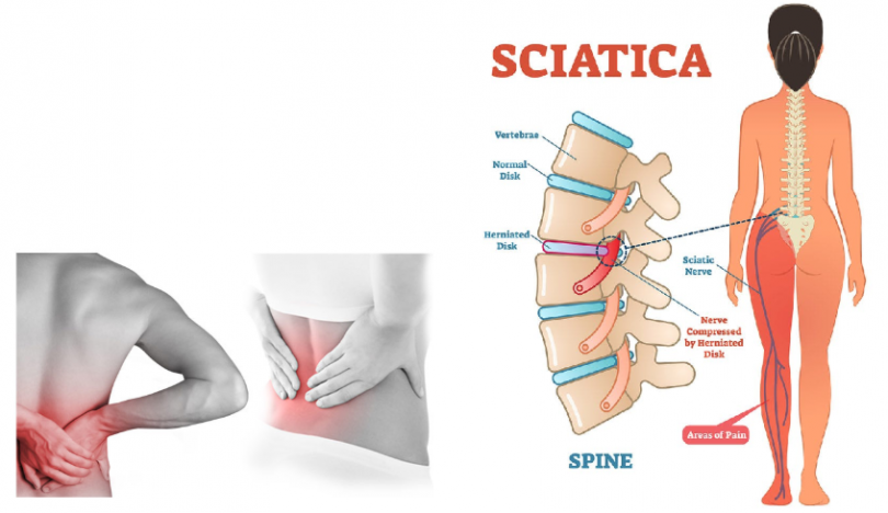 how to relief from scitica pain
